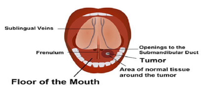 Mouth care treatment in Las Vegas Usa America